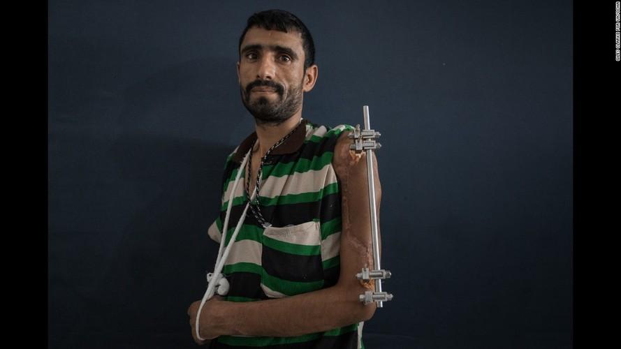 Toan canh cuoc khung hoang nhan dao tram trong o Yemen-Hinh-8