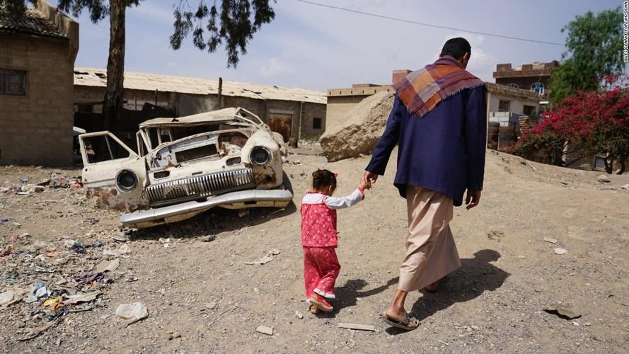 Toan canh cuoc khung hoang nhan dao tram trong o Yemen-Hinh-9