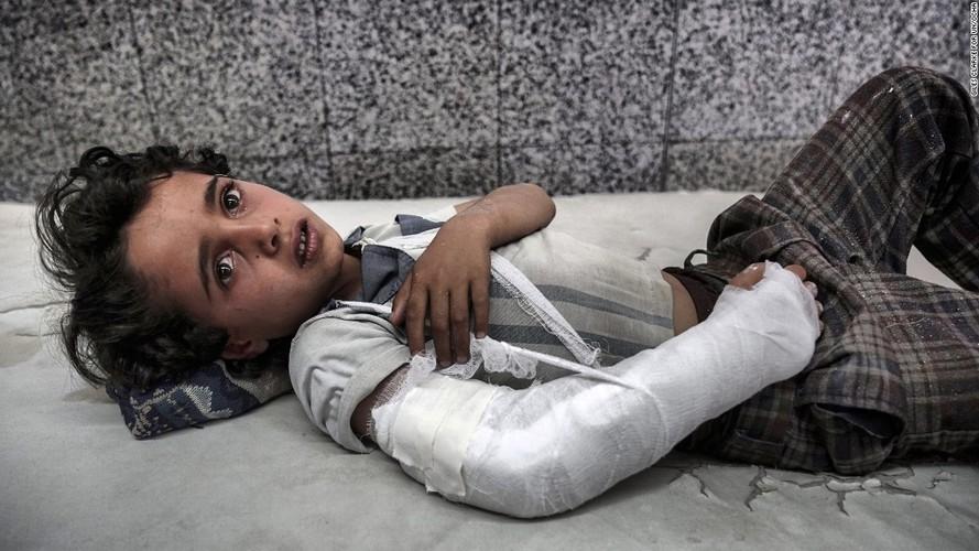 Toan canh cuoc khung hoang nhan dao tram trong o Yemen