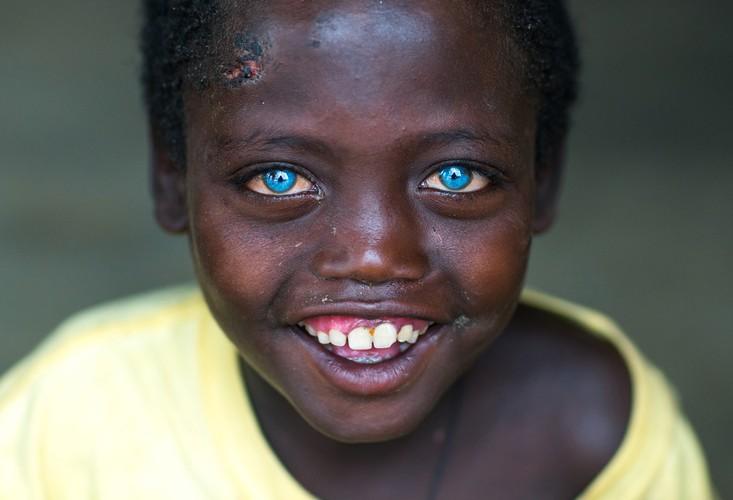 Tan muc cuoc song da dang o dat nuoc Ethiopia-Hinh-9