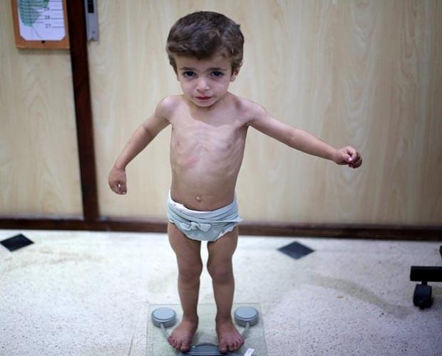 Nhoi long tham canh cua tre em Syria do khung hoang luong thuc-Hinh-2