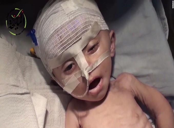 Nhoi long tham canh cua tre em Syria do khung hoang luong thuc-Hinh-4