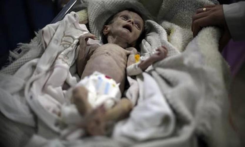 Nhoi long tham canh cua tre em Syria do khung hoang luong thuc