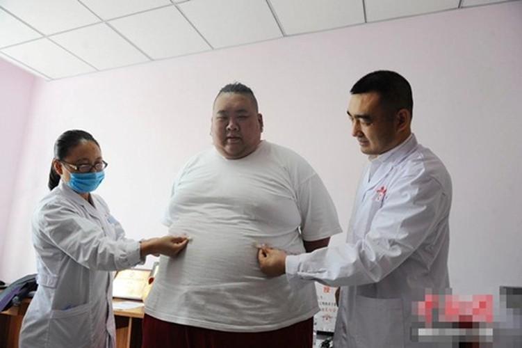 Hot boy tro thanh beo phi tang len 255kg vi that tinh-Hinh-8