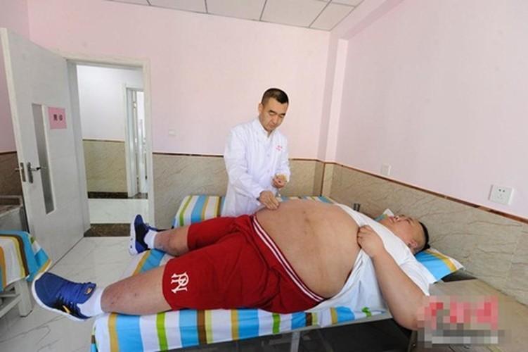 Hot boy tro thanh beo phi tang len 255kg vi that tinh-Hinh-9