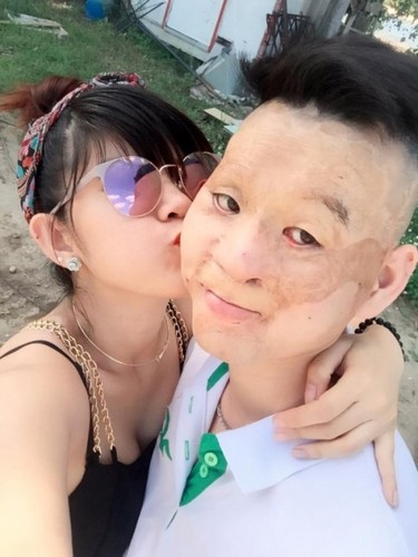 Hanh phuc kho tin cua kieu nu va chang trai mat bi bien dang-Hinh-2