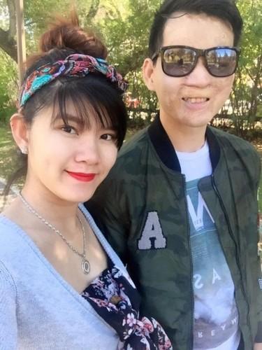Hanh phuc kho tin cua kieu nu va chang trai mat bi bien dang-Hinh-7