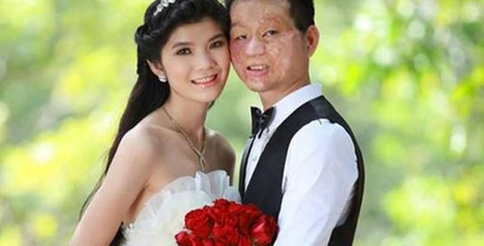 Hanh phuc kho tin cua kieu nu va chang trai mat bi bien dang