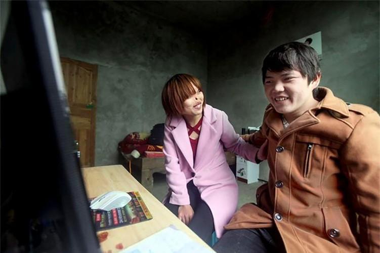 Co gai bi chuot can het mui cuoi cung cung co nguoi yeu-Hinh-4