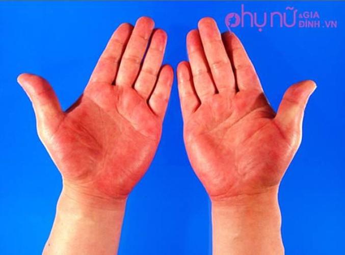 3 dau hieu o ban tay cho thay ban dang co benh-Hinh-3
