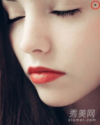 Phu nu co not ruoi nay, coi chung kho vi tinh-Hinh-4