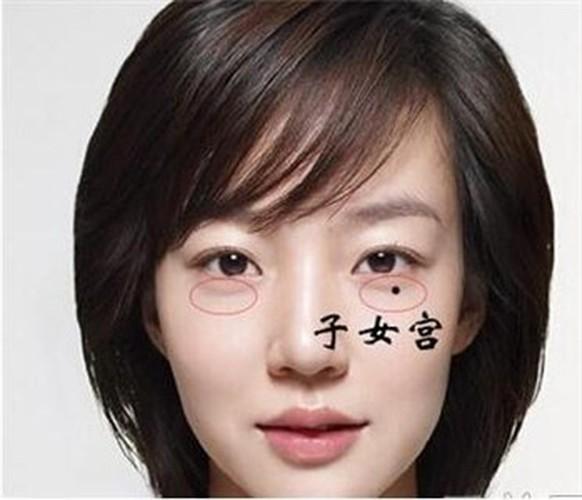 5 not ruoi khac chong khong the khong xoa bo-Hinh-7