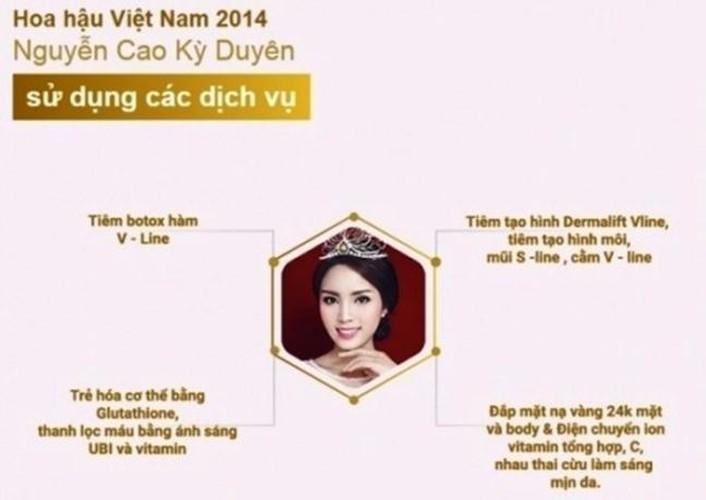 Nhan sac ngay cang khac la cua Hoa hau Ky Duyen-Hinh-6