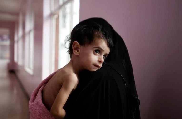 Xot xa chum anh ve nan doi khung khiep o Yemen-Hinh-13