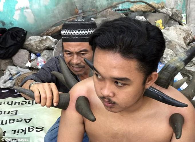 Kinh ngac truoc phuong phap chua benh duong pho bang sung trau-Hinh-4