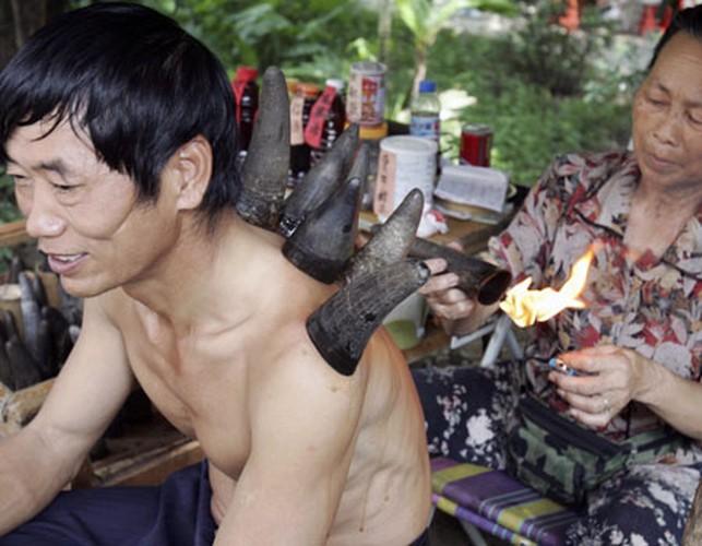 Kinh ngac truoc phuong phap chua benh duong pho bang sung trau-Hinh-9
