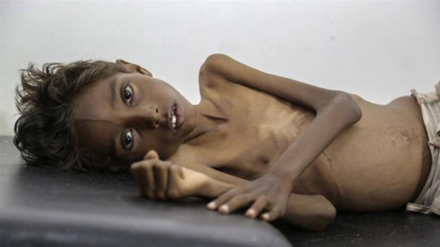 Nhung buc hinh am anh ve tinh trang suy sinh duong o Yemen-Hinh-12