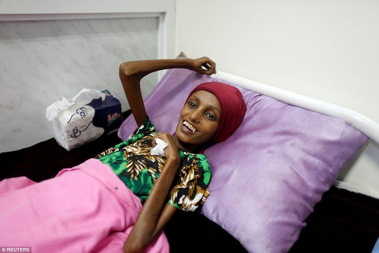 Nhung buc hinh am anh ve tinh trang suy sinh duong o Yemen-Hinh-3