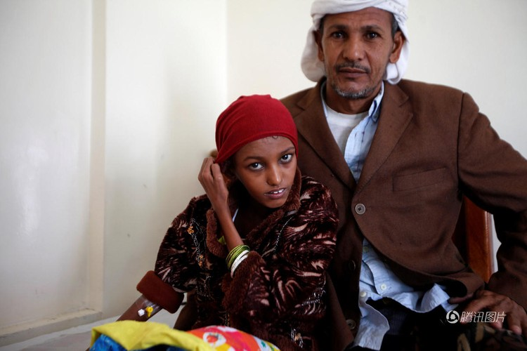 Nhung buc hinh am anh ve tinh trang suy sinh duong o Yemen-Hinh-7