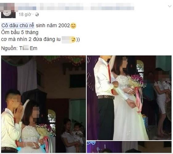 "Xon xao dam cuoi ""chay bau"" cua cap doi sinh nam 2002"