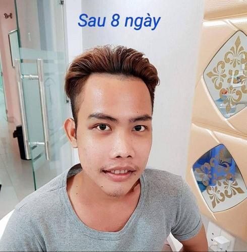 Tung Son khoe dien mao moi nhat, da trang nhu Ngoc Trinh-Hinh-5