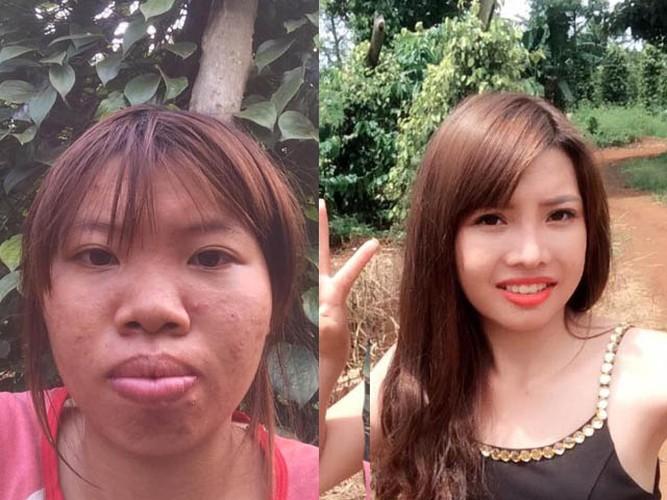 "Phuong ""Thi No"" livestream canh phau thuat ""vung kin"" gay soc"