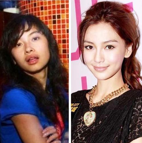 Angelababy, Duong Mich phat tai nho phau thuat tham my-Hinh-3
