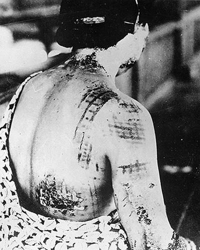Giat minh hau qua My nem bom hat nhan xuong Nhat 1945-Hinh-6