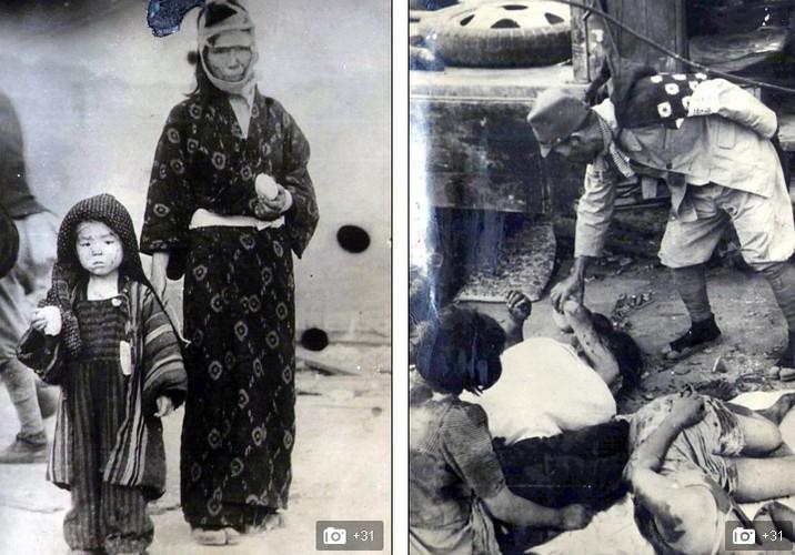 Giat minh hau qua My nem bom hat nhan xuong Nhat 1945-Hinh-7