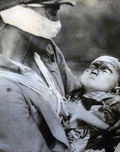Canh tuong hai hung tai tam vu no bom nguyen tu Hiroshima-Hinh-9