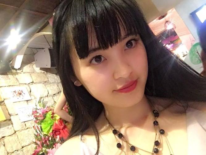 """Gia the """"tien nu Lao Cai"""" nuoi be 14 thang nang 3,5kg-Hinh-7"""