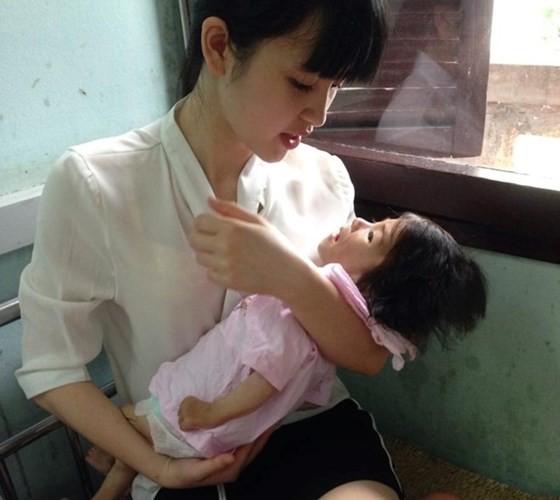 """Gia the """"tien nu Lao Cai"""" nuoi be 14 thang nang 3,5kg"""
