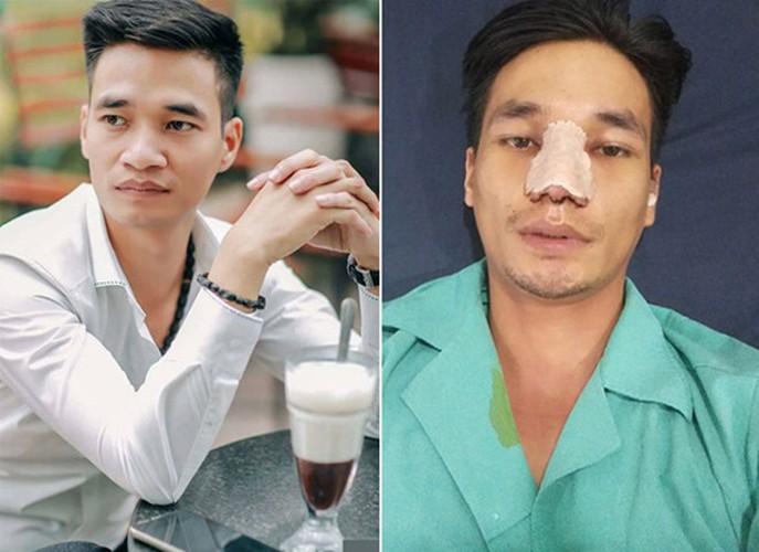 "Le Roi, Tung Son va Thuy Vi co ""doi doi"" sau tham my?-Hinh-7"