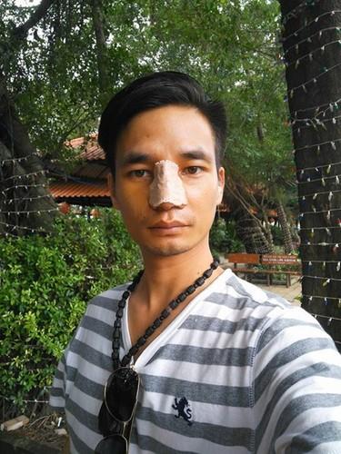 """Hanh trinh lam mat """"lai Tay"""" cua """"hot boy vuon oi"""" Le Roi-Hinh-5"""