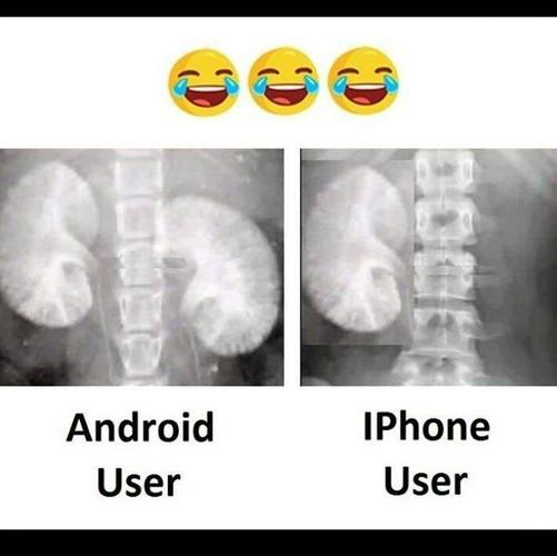 """iPhone 8 ra mat, dan mang ru nhau... """"ban than"""" kiem tien-Hinh-3"""