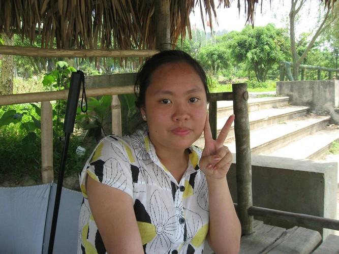 """Yeu chong, co gai Nam Dinh beo, mo hoi dau quyet """"doi doi""""-Hinh-3"""