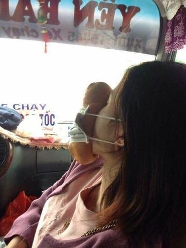 1001 cach chong say xe quai dan khien dan mang cuoi vo bung-Hinh-2