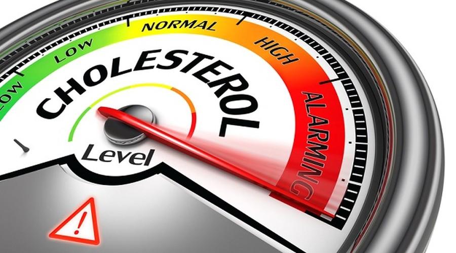 Nhung dieu nen biet de khong lo lang qua ve cholesterol-Hinh-6