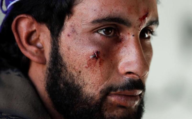 Khoc liet cuoc chien giua duong pho Raqqa, Syria-Hinh-18