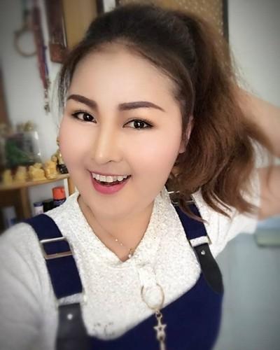 Khuon mat kinh di cua co gai sau khi hut mo lam dep-Hinh-4
