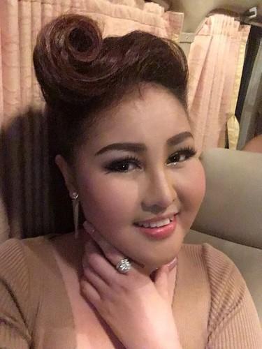 Khuon mat kinh di cua co gai sau khi hut mo lam dep-Hinh-9