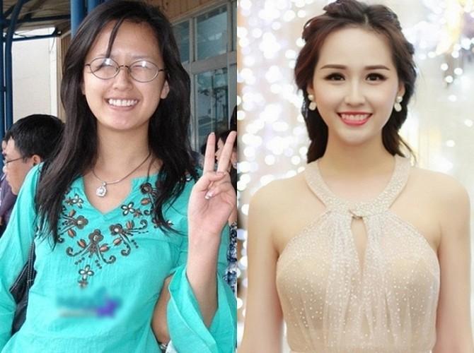 """Sao Viet va minh chung chi can lam rang la """"cuu"""" ca guong mat-Hinh-12"""
