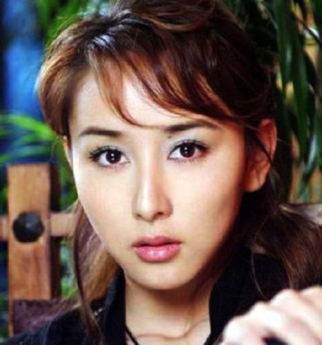 Boi chuan not ruoi dinh menh tren mat my nhan Hoa ngu-Hinh-8