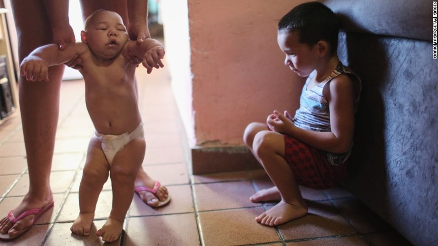 5 dieu can biet ve virus Zika an nao nguoi-Hinh-2