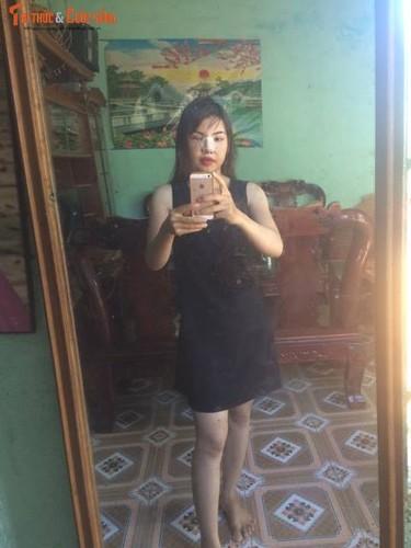 Me don than o Dak Nong phau thuat tham my vi xau xi-Hinh-10
