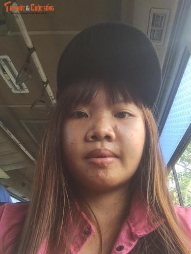 Me don than o Dak Nong phau thuat tham my vi xau xi-Hinh-4