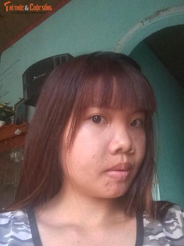 Me don than o Dak Nong phau thuat tham my vi xau xi-Hinh-5