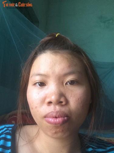 Me don than o Dak Nong phau thuat tham my vi xau xi-Hinh-7