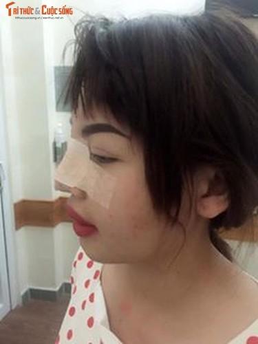 Me don than o Dak Nong phau thuat tham my vi xau xi-Hinh-8
