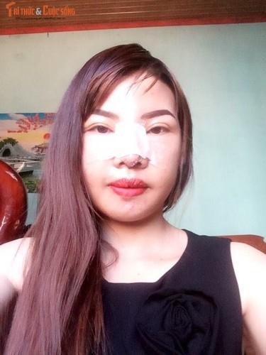 Me don than o Dak Nong phau thuat tham my vi xau xi-Hinh-9